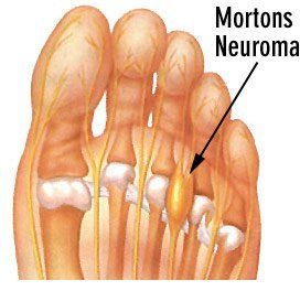 What is Morton's Neuroma? a condition that occurs in the foot—most often between the 3rd and 4th toes—where the tissue thickens around the nerves leading to the toes.