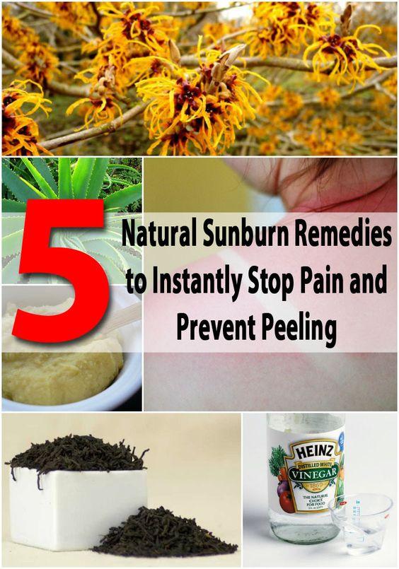 5 Natuurlijke Zonnebrand remedies om onmiddellijk stoppen pijn en Prevent Peeling