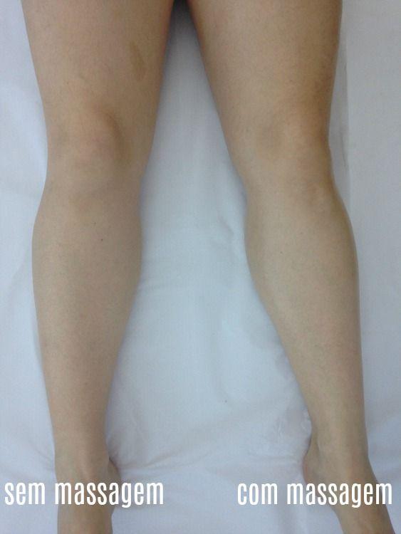 Drenagem Renata Franca Com Imagens Massagem Massagem