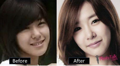 Tiffany Snsd Plastic Surgery Surgery Snsd