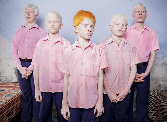 Impressionantes e Polêmicas fotos descrevem nossa raça humana - Meninos albinos e cegos. West Bengal, Índia.