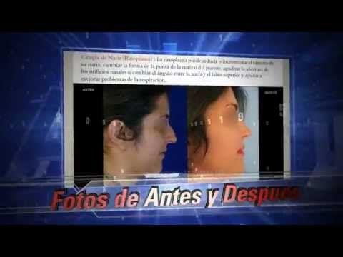 Foro de Cirugia Plastica Estetica y Medicina de MedicosLideres.com #forocirugiaplastica