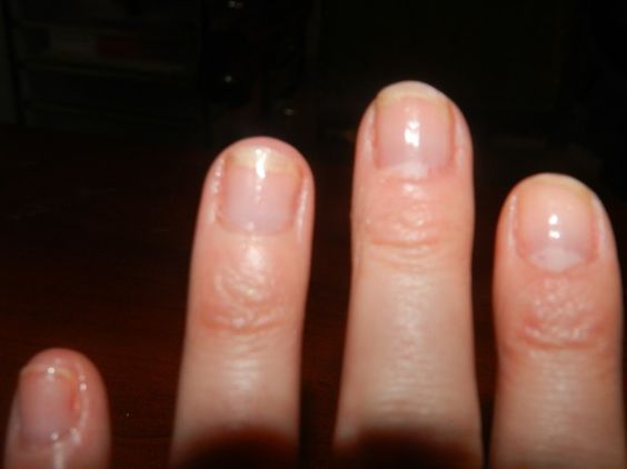 My Nails After Using All Products