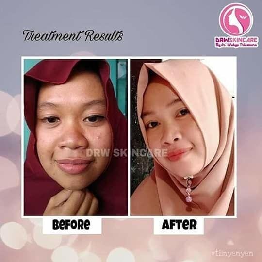 Drw Skincare Untuk Wajah Bopeng