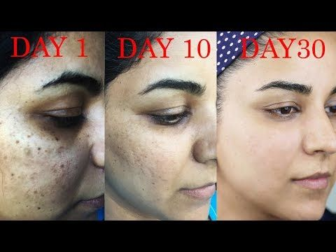 ce87cd5ee5cba2f8df07b878adb4d12b - How To Get Rid Of Acne Scars And Hyperpigmentation Naturally