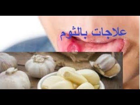 حقائق ومعلومات تجهلها عن فوائد الثوم لصحتك علاج تقرحات الفم والبواسير Garlic Vegetables Food