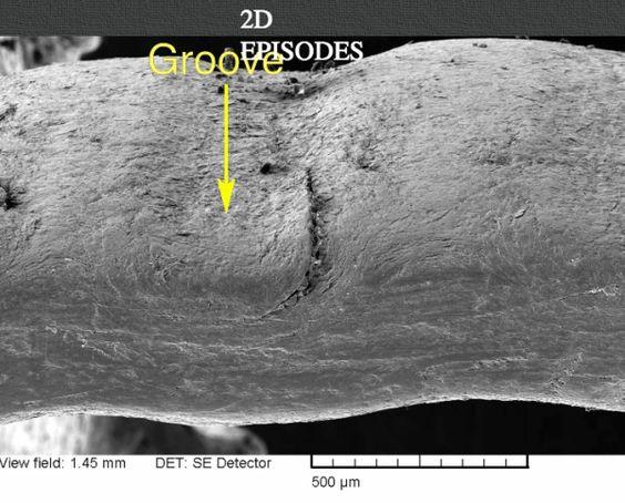 Ridges in Nails - Microscopic photo