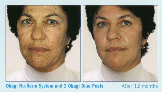 Chemical peel before and after obagi nu derm and 2 blue for A nu u salon sarasota