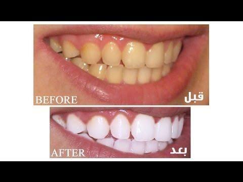 خلطات تبييض الأسنان في المنزل طريقة سهلة لتبييض الاسنان في المنزل Convenience Store Products Convenience Store Pill