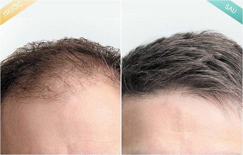 Phương pháp cấy tóc tự thân cần quan tâm đến những gì?