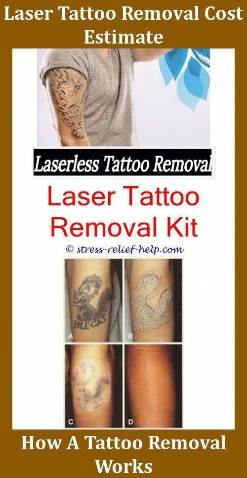 True Fade Tattoo Removal Cream Home Tattoo Removal Tattoo Removal