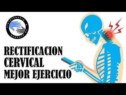 artrosis cervical ejercicios prohibidos
