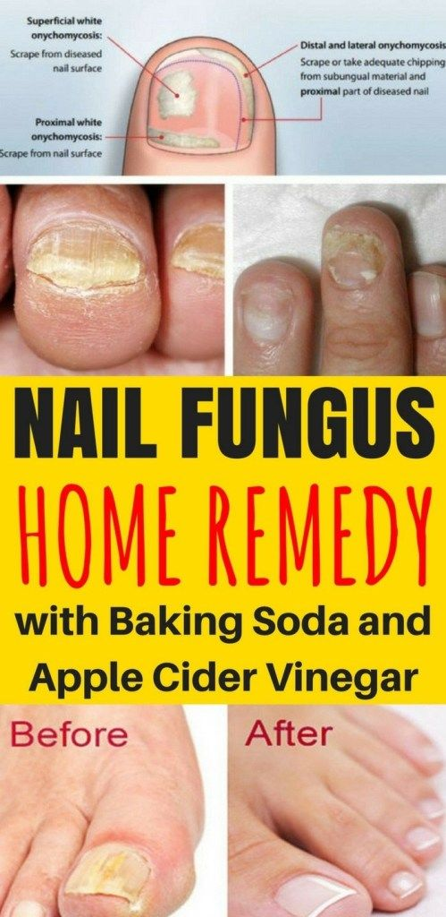 Nail Fungus Home Remedy Baking Soda Apple Cider Vinegar Nail