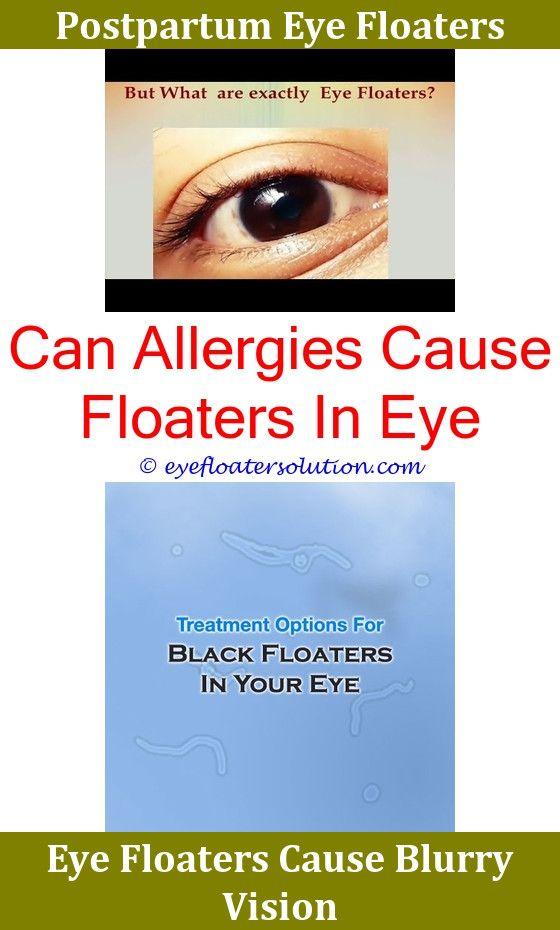 Over masturbation eye floaters