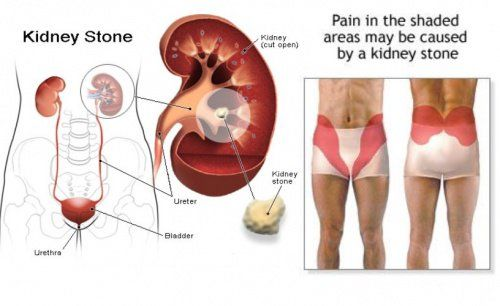13 Warning Signs You Ll Get Kidney Stones In The Future And How To Prevent Them Kidney Stones Symptoms Kidney Stones Kidney Symptoms