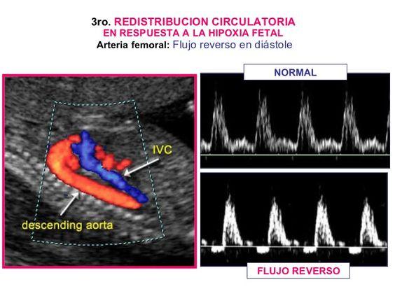 3ro.  REDISTRIBUCION CIRCULATORIA   EN RESPUESTA A LA HIPOXIA FETAL  Arteria femoral:   Flujo reverso en diástole NORMAL F...