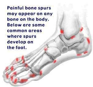 bunion bone spur