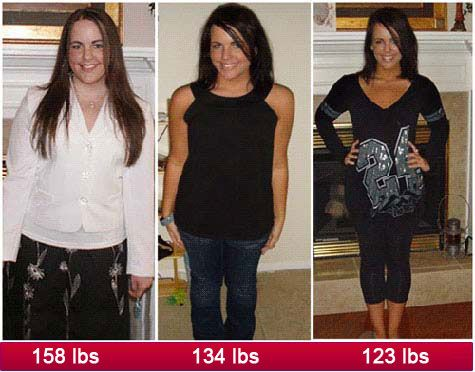 More than approved dental weight loss devices