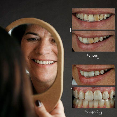 Biocarillas Carillas Dentales Dental Coronas Dentales