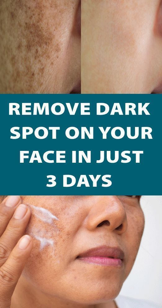 I Got Shocked With The Results Of This Magical Remedy It Removed Dark Spot In 1 Day Good Skin Tips Remove Dark Spots Skin Spots