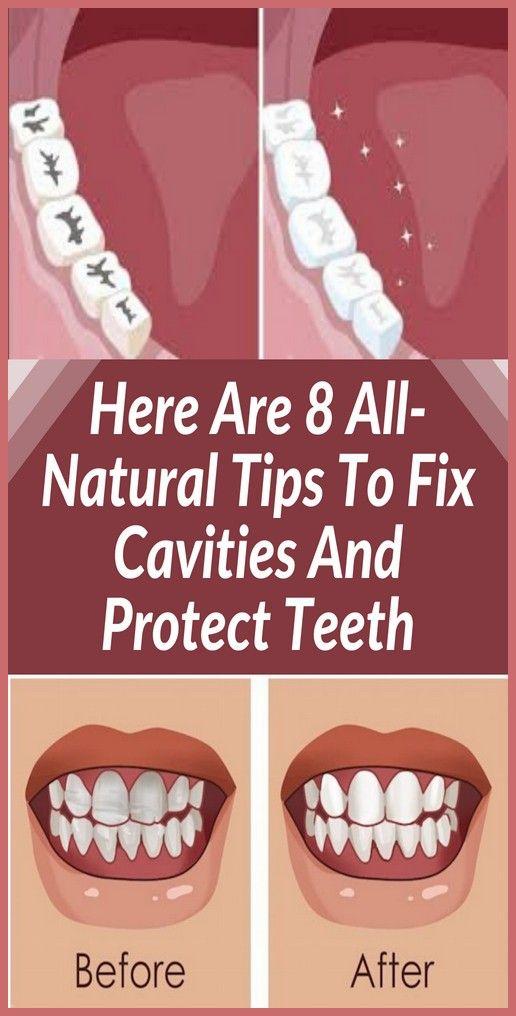 How To Fix Rotting Teeth : rotting, teeth, Tooth, Decay, Cavities,, Decay,, Teeth, Health