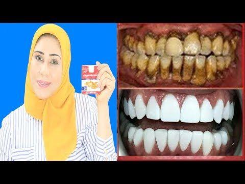 قل وداعا للطبيب الوصفة الربانية لتبييض الأسنان في أقل من 2 دقائق فقط اسنان كالؤلؤ Youtube Natural Health Tips Health Tips Natural Health