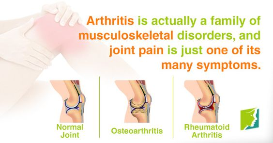 Arthritis is actually a family of musculoskeletal disorders, and joint pain is just one of its many symptoms.