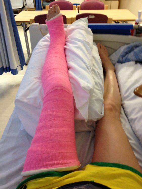 Full Leg Cast Ouch Pinterest To Be New You And The
