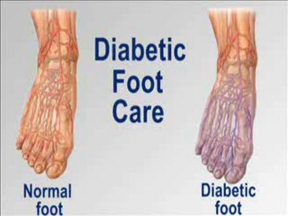 Diabetes typ 2 schmerzen in den beinen