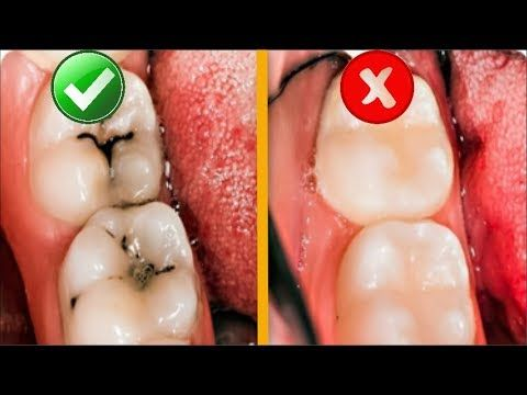 8 Simple Ways To Naturally Heal Tooth Decay And Reverse Cavities Youtube Tooth Decay Tooth Decay Remedies Dental Decay