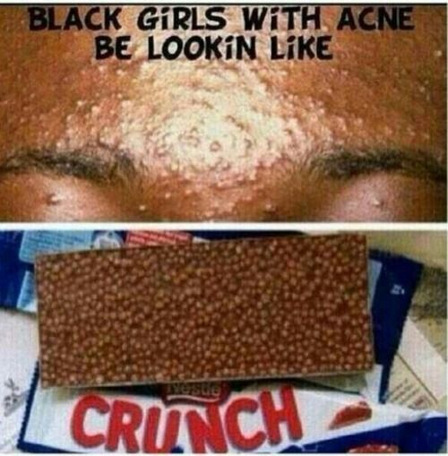 Black girls with bad acne be looking like
