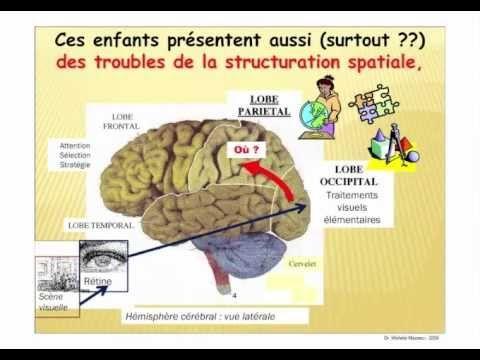 Une présentation en vidéo très intéressante sur la dyspraxie qui explique également le lien qui existe, souvent, avec les troubles visuo-spatiaux. Conférence du Dr Michèle Mazeau, médecin de rééducation et neuropsychologue, donnée le 10 septembre 2009 à la Faculté de Médecine de Poitiers.