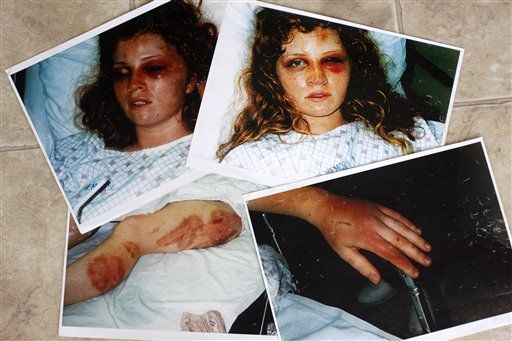 Domestic Violence Victims - Bing Images