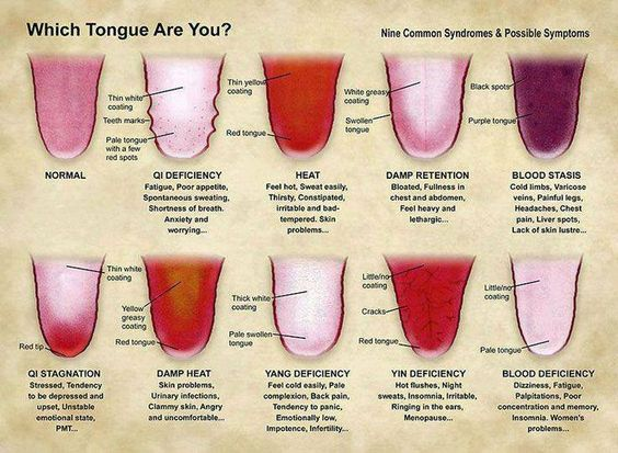 chinese-tongue-diagnosis Images - Frompo - 1