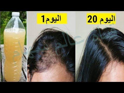 مكون ذكر بسورة البقرة منذ قرون كنزلعلاج تساقط الشعرالحاد للفراغات بمقدمة الرأس تكثيف وتقوية الشعرلل Hair Care Oils Beauty Recipes Hair Facial Skin Care Routine