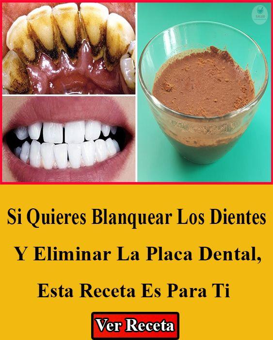 Si Quieres Blanquear Los Dientes Y Eliminar La Placa Dental Esta Receta Es Para Ti Blanquear Dientes Cómo Blanquear Los Dientes Placas Dentales