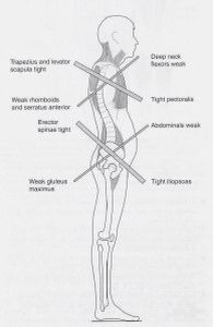 Upper and Lower Crossed Syndrome
