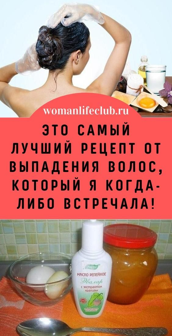 Eto Samyj Luchshij Recept Ot Vypadeniya Volos Kotoryj Ya Kogda Libo Vstrechala Hair Beauty Beauty Health