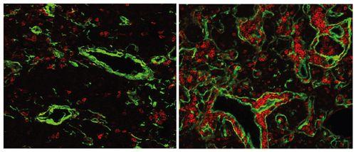 Aus Maus wird wieder Fisch: Genetiker drehen Immunsystem um 500 Millionen Jahre zurück   http://grenzwissenschaft-aktuell.blogspot.de/2014/08/aus-maus-wird-wieder-fisch-genetiker.html  MPI für Immunbiologie und Epigenetik