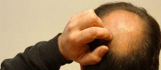 ¿Arrancar el cabello para tener más?