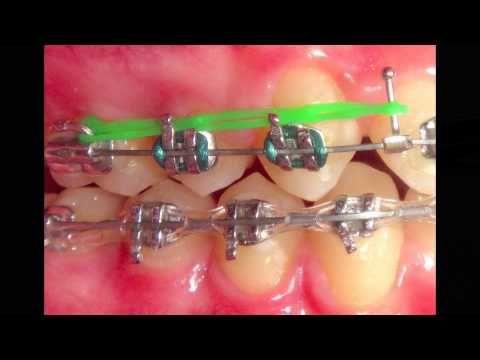 Pin En Odontología