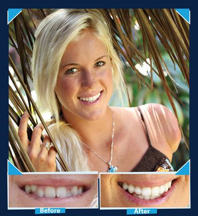 """""""Soul Surfer"""" Bethany Hamilton Before and After Braces"""