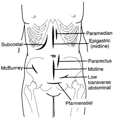 Types of abdominal incisions