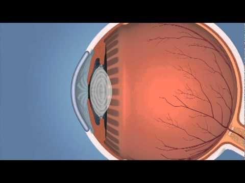 Y tú, ¿cómo ves?; datos que debes conocer del Glaucoma y Edema Macular - http://plenilunia.com/prevencion/y-tu-como-ves-datos-que-debes-conocer-del-glaucoma-y-edema-macular/41672/