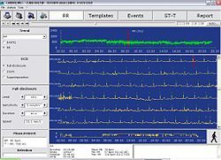Holter monitor - Wikipedia, the free encyclopedia
