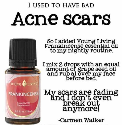 Acne Scars Gone!