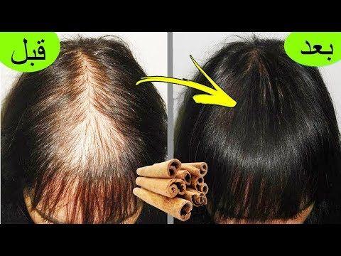 مكون في كل بيت ينبت الشعر في مقدمة الراس بسرعة والنتيجة مبهرة تعالج الصلع والتساقط الشديد Youtube Hair Care Oils Treat Hair Fall Hair Styles