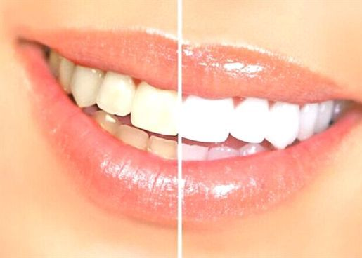 Tooth Whitening Queens, Ny - Free Consultation