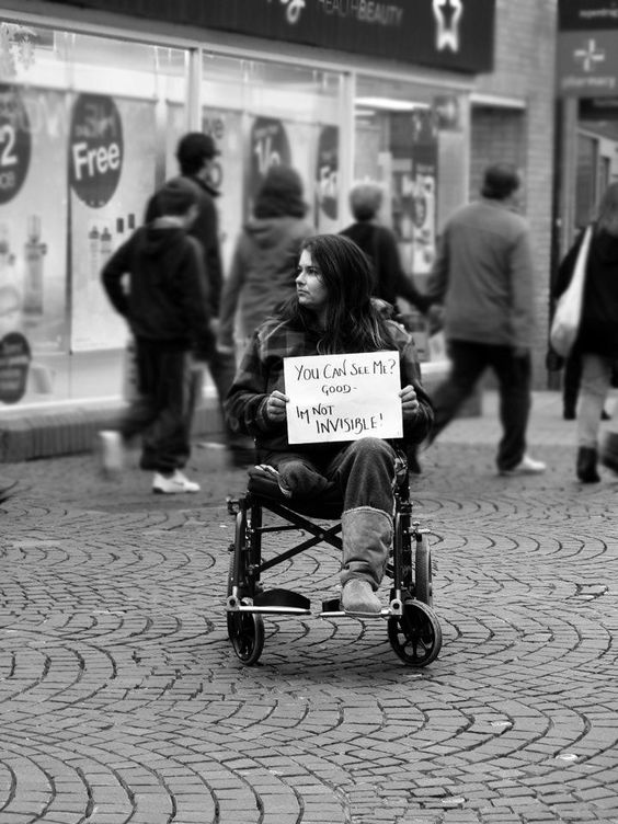 """disability awareness. I only pinned this because I want to say that I find this very aggressive, no need to be angry with people on the street who just don't know how to react properly. If they did look could you just as easily have a sign that says """" Stop Staring """". People who avert their eyes are only guilty of bad manners, lets not be bad mannered also."""