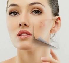 Manchas en la cara por quimioterapia